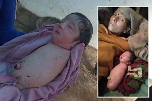 Baby girl born with no arms or legs due to rare genetic disorder baffles doctors in India